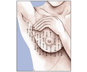 How to Perform a Breast Self-Exam